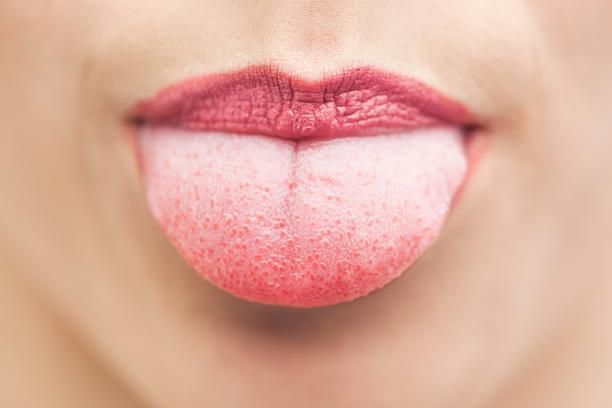 How To Get Rid Of White Spots On My Tongue