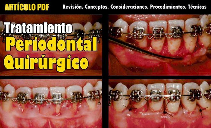 PDF: Tratamiento periodontal quirúrgico: Revisión. Conceptos. Consideraciones. Procedimientos. Técnicas | Ovi Dental