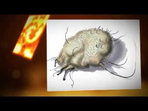 Scabies the Symptoms  Scabies Treatment  Important INFO # - Scabies Prevention and Treatment Resources - Scabies News