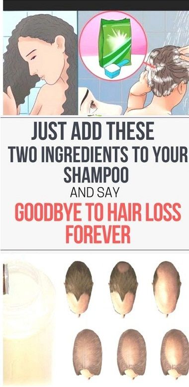Do you know what causes hair loss? The experts say that hair loss is related to various factors as stress, pregnancy, menopause, weight loss, etc. But, also other reasons can speed up and promote the hair loss. Stress can cause a hormonal imbalance and lead to excessive hair loss. This issue can make you insecure …