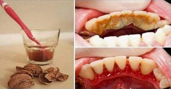 Diş tartarları nasıl temizlenir?          40 gram ceviz kabuğunu bir bardak suda  20 dk kaynatın ve süzün.     Dişlerinizi günde 3 defa ...