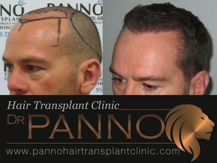 tecnica fue de trasplante capilar dr panno malaga en este caso el Dr Panno recupera un trasplante capilar realizado en turquia donde la densidad era escasa