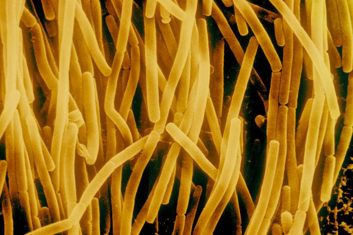 Bacillus subtilis may look like pasta under the microscope, but the bacteria are common in the gut of humans. Could the microbes be contributing to our belly fat? Too soon to tell, scientists say.