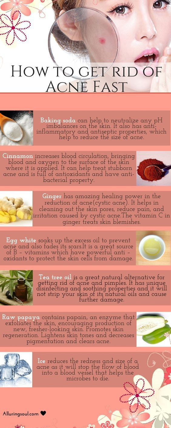 To avoid side effects of OTC medicines,there are powerful home remedies for how to get rid of acne and pimples fast as well as for removing acne black spot. -- You can find more details by visiting the image link.