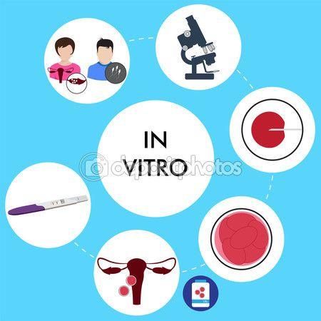 In vitro fertilization — Stock Illustration #65815717