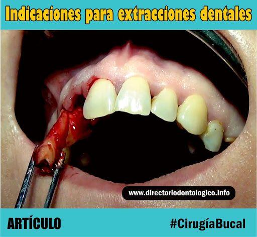 extracción-dental