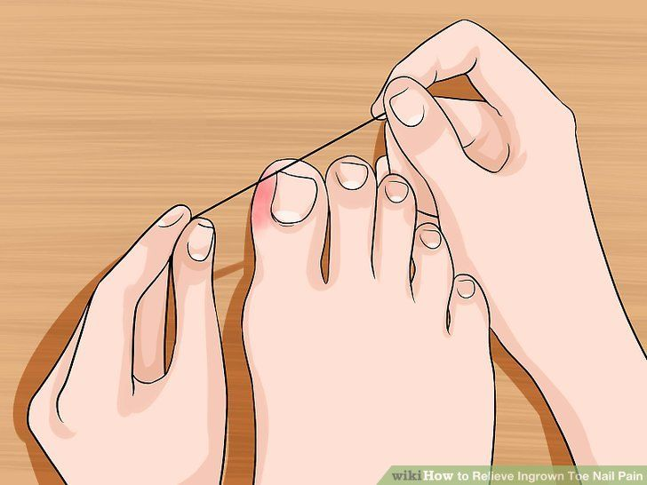 6 Невероятни Начина Да Направите Краката и Ноктите Си Да Изглеждат Перфектно! - Поничка