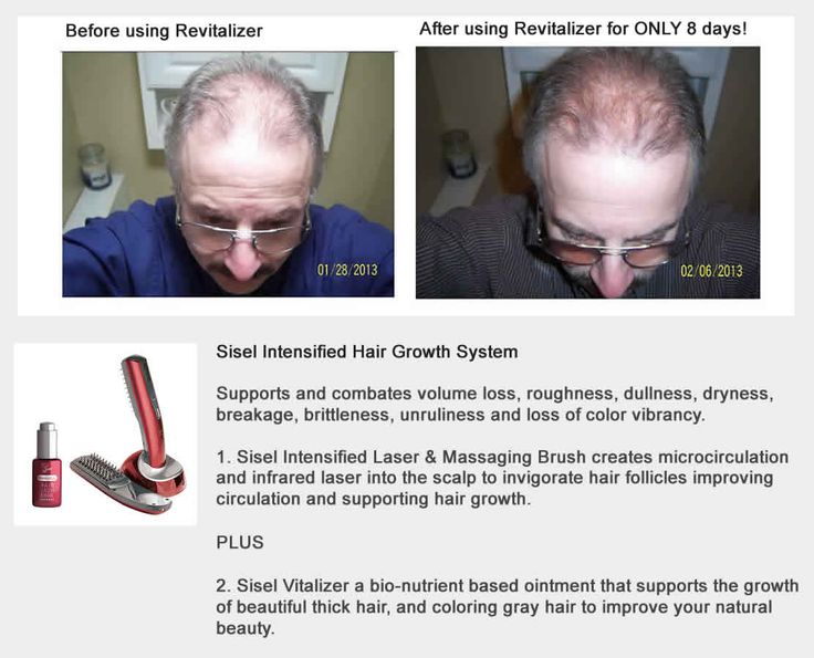 Sisel Intensified Hair Growth System - Do you have thinning, balding, or patchy hair?
