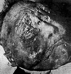 Emmett Till Body | ... on Emmett Till's body that was given to him byhis father, Louis Till