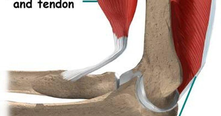 Como ocorre a tendinite do tríceps?. Tendinite é a inflamação de um tendão (tecido que conecta os músculos aos ossos). A tendinite do tríceps é a inflamação do tendão que liga os músculos do tríceps (músculo do lado de trás do braço) ao cotovelo. Essa condição causa dor na parte de trás do braço e do cotovelo. Frequentemente, ela é chamada de ''cotovelo de tenista''.