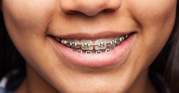 Brackets metálicos: ventajas e inconvenientes que debes conocer