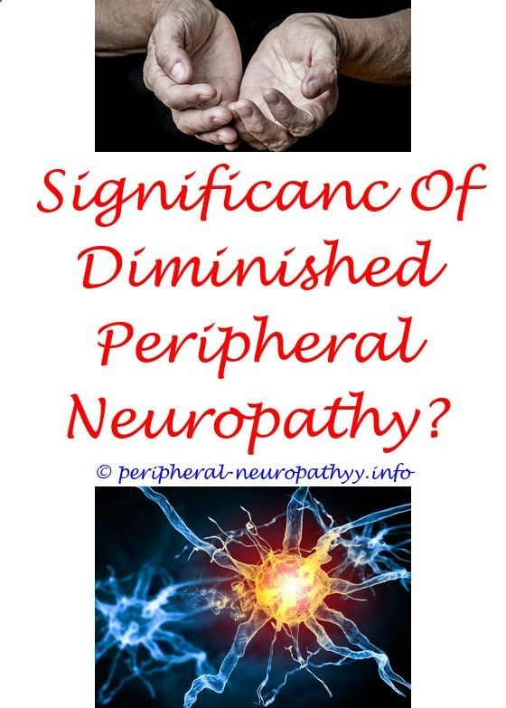 home remedies for foot neuropathy - radiculoplexus neuropathy definition.multifocal neuropathy conduction block neuropathy toe icd 9 flat disc loss of peripheral neuropathy 5093307589