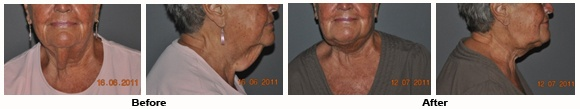 LipoLite Before and After Photos: Neck