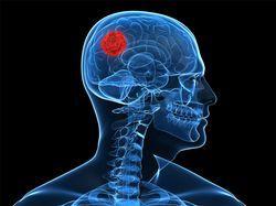 Du nouveau contre certaines tumeurs du cerveau