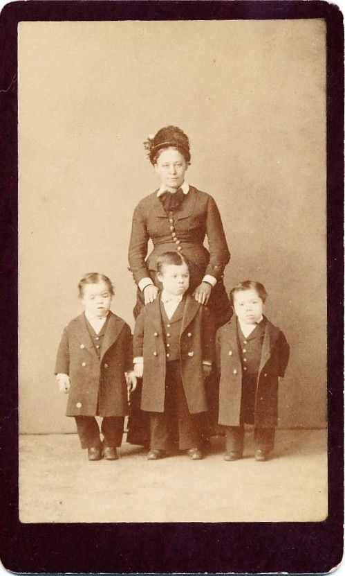 Its circus midgets 1800 s face she has