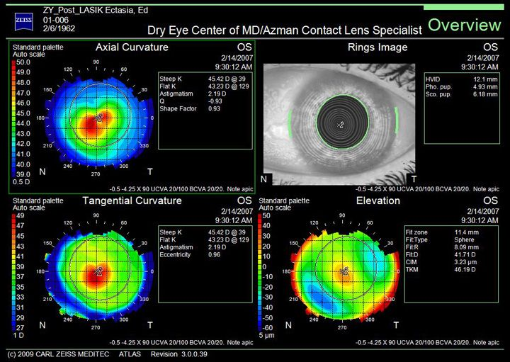 37 Best Images About Irregular Corneas And Scleral Contact
