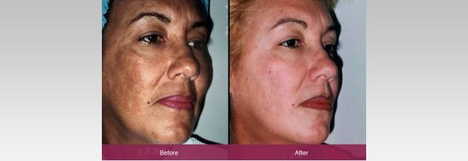 Harley Street Skin Clinic can offer #Chemical #Peeling #Treatment in London with lots of benefits. For those who would love to repair their damaged skin, a chemical peel is a great way to exfoliate and rejuvenate the skin. For More Details Please Visit Our Website: http://harleystreetskinclinic.com/