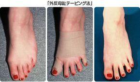 外反母趾のテーピング法 | 外反母趾・フットケアの笠原式ページ