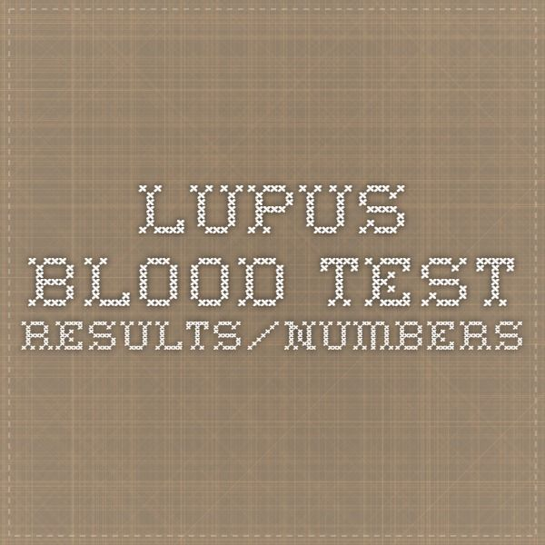lupus blood test results/numbers