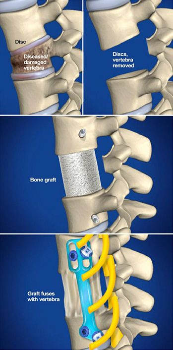 Lumbar Corpectomy is performed to relieve the pain caused when diseased or damaged vertebrae bone blocks and pinches the spinal cord. It also corrects spinal column deformities. During this procedure, the patient is positioned on his right side. The surgery is performed through the patient's left side. http://www.southeasternspine.com/procedures-treatments/lumbar-corpectomy/