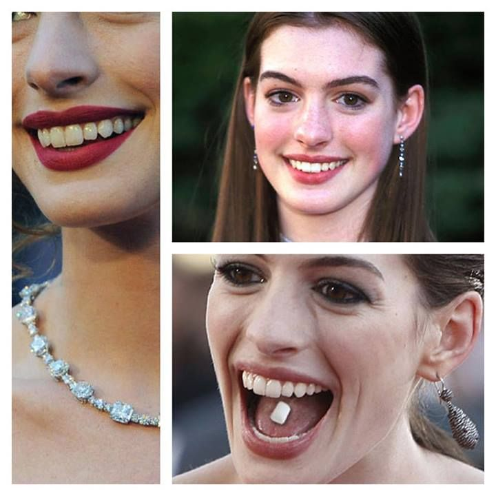 Anne Hathaway People: 14 Best Anne Hathaway Images On Pinterest