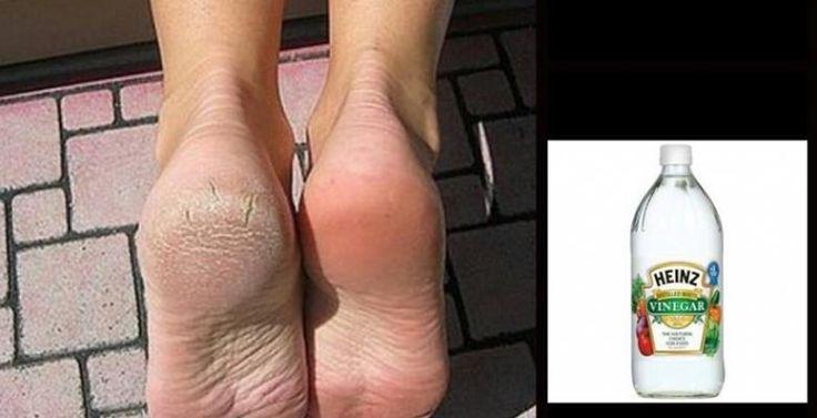 Um truque incrível para os seus pés!