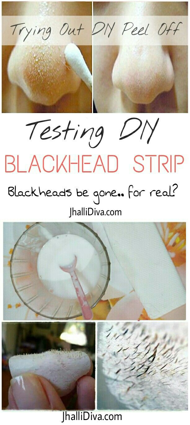 Trying out DIY peel off blackhead removal mask. Worth the hype? Checkout how blackhead removal strips worked for me.