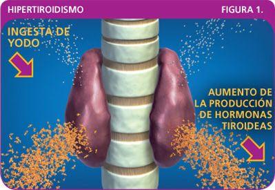 Hipertiroidismo:  Aumento del funcionamiento de la glándula tiroides que implica un aumento de niveles en hormonas tiroideas. El metabolismo es muy activo: el individuo pierde su peso y su pulso es rápido, nuestra ansiedad, excitabilidad, mucho apetito y una intolerancia al calor es característica también de una expresión de estupor.  Las causas se deben a alteraciones del control cerebral, enfermedad de graves, bocio,tiroiditis. Entre otras.