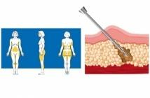 La liposuzione consiste nell'asportazione del grasso in eccesso presente tra la pelle e il muscolo.