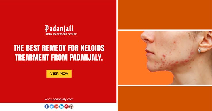Best Keloids and Keloids Scar Removal Treatment From Padanjaly
