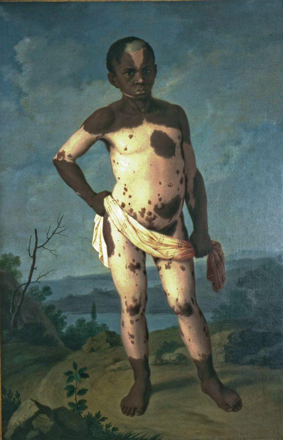 Portrait de Siriaco,1768, huile sur toile, Cliché P. Balloul, Musée d'Histoire de la Médecine - Paris.