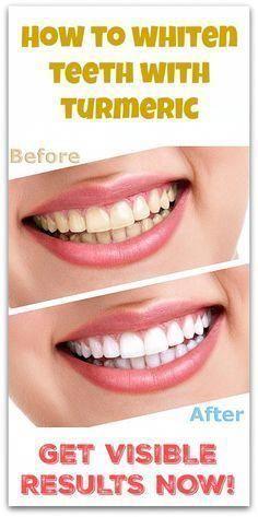 Wenn es um weißere Zähne geht, auch wenn die Mundhygiene perfekt ist …