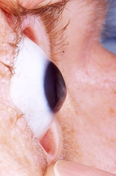 "The ""conical cornea"" that is characteristic of keratoconus"