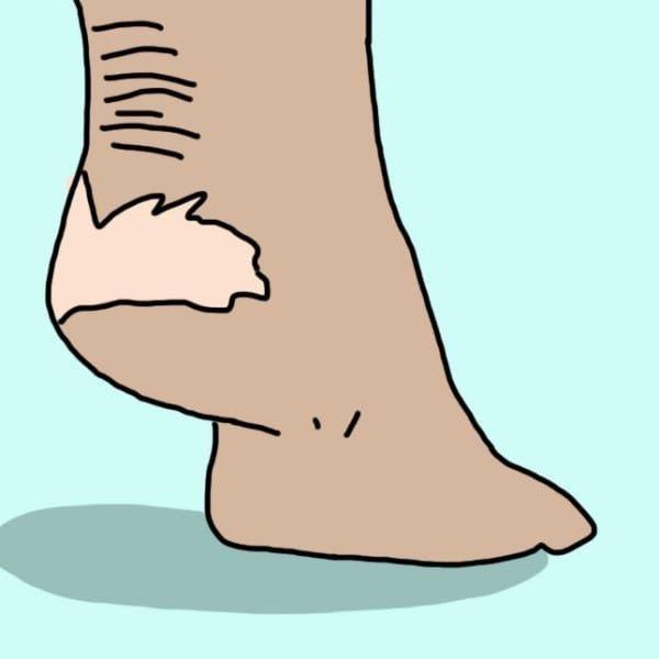 Огрубевшая кожа Чтобы снять ороговевший слой кожи с легкостью, используй ванночку для ног с перекисью водорода. 4 ст. л. перекиси раствори в 1,5 л воды. Подержав ноги в таком средстве всего 15 минут, ты увидишь, насколько лучше стало состояние кожи! При помощи пемзы потри огрубевшие участки: безупречный результат гарантирован.