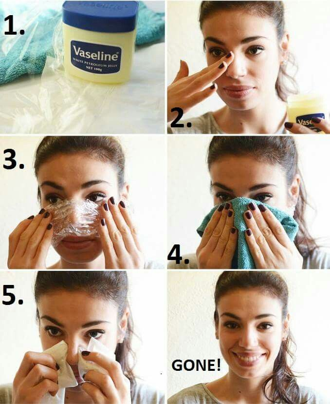 How To Use Vaseline For Blackheads Treatment Apply a thick coat of Vaseline or petroleum jelly on the blackheads affected area. For best results, apply Vaseline after a shower or washing the blackheads affected area with water as it will make the extraction of dirt and grime easier.Now cover the area (where you have applied Vaseline) with a piece of clear plastic or glad wrap.Keep the skin wrapped with plastic and apply two hot damp washcloths for five minutes on the skin.