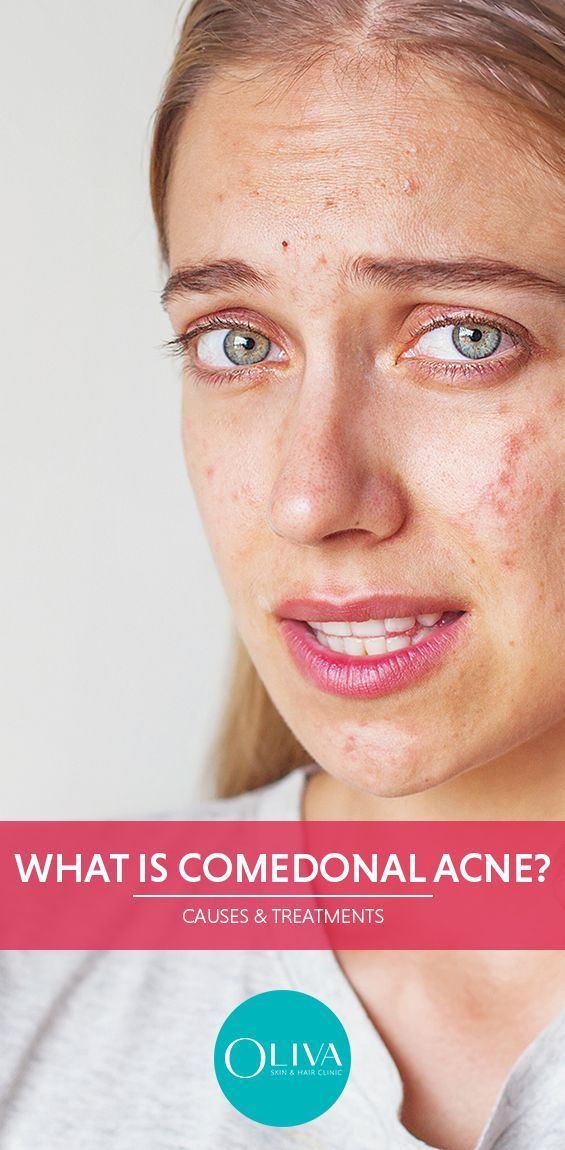 Improve Your Skin With These Great Tips Comedonal Acne Acne Sebaceous Gland
