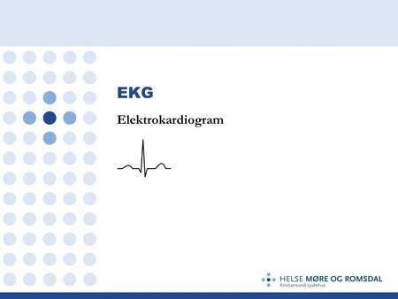 EKG Elektrokardiogram. EKG Hjertets depolarisering skaper elektriske bølger Et EKG apparat måler denne elektriske aktiviteten igjennom huden Baserer seg.