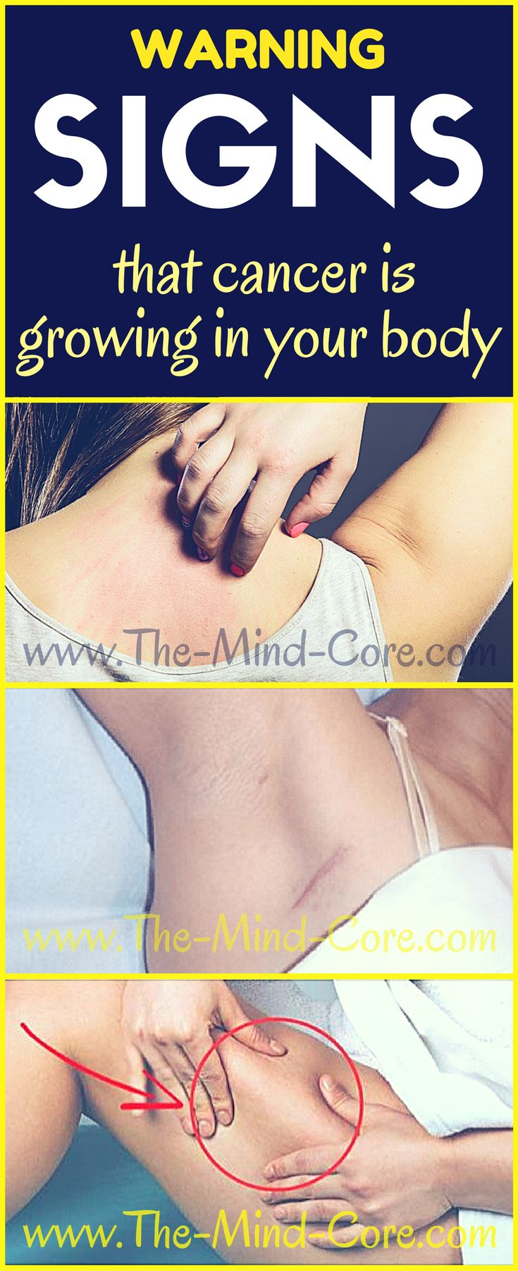 Early Warning Signs That Cancer is Growing in Your Body (Don't Ignore Them!)