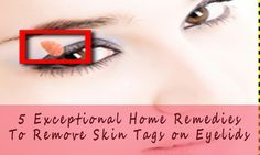 5 Exceptional Home Remedies To Remove Skin Tags on Eyelids   If there is anyone who have skin tags on eyelid then you can apply some home remedies that can help you remove such skin tags on eyelids with an ease. For more information, you can log on to:  http://www.eyelidslift.com/blog/5-exceptional-home-remedies-remove-skin-tags-eyelids