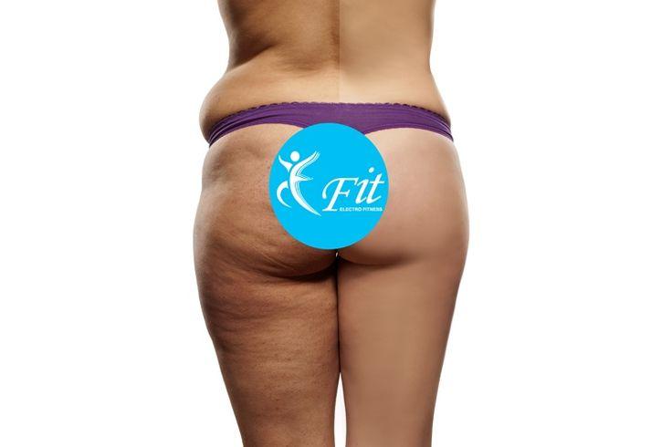 E-Fit figuurcorrectie voor een strak en slank lichaam