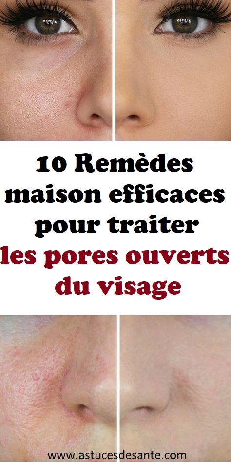 10 rem des maison efficaces pour traiter les pores ouverts du visage rem des rem desmaison - Gommage visage maison point noir ...