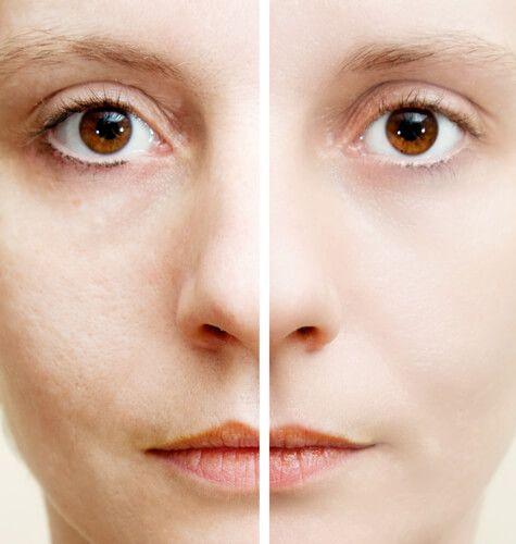 5 ingredientes naturales que ayudan a eliminar las manchas oscuras El ácido cítrico del limón ayuda a exfoliar la piel y a eliminar las células muertas. Recuerda aplicarlo de noche, puesto que si te da el sol puede tener efectos contrarios