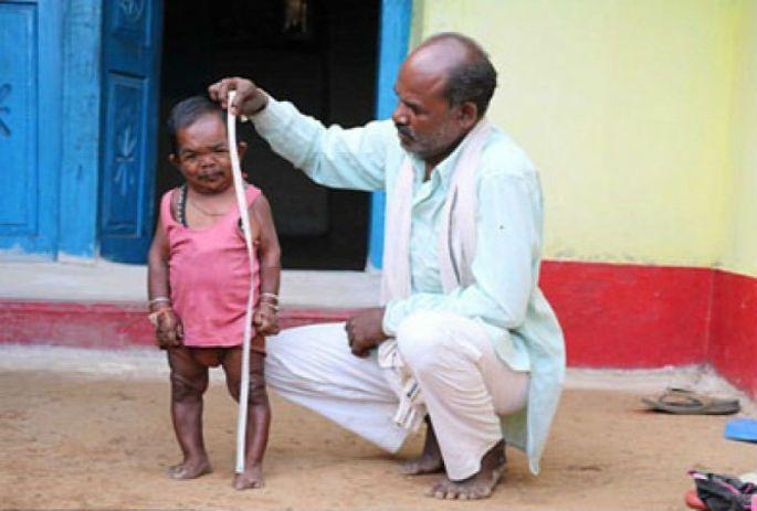 5 வயது பிள்ளையின் தோற்றம் கொண்ட 50 வயது மனிதர் (படங்கள்) #India #MadhyaPradesh #Yaalaruvi #யாழருவி  மேலும் தெரிந்து கொள்ள: www.yaalaruvi.com