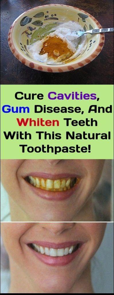 This Turmeric Anti-Inflammatory Paste Will Reverse Gum Disease, Swelling, And Kill Bacteria