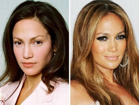 Jennifer Lopez Before And After – Morably