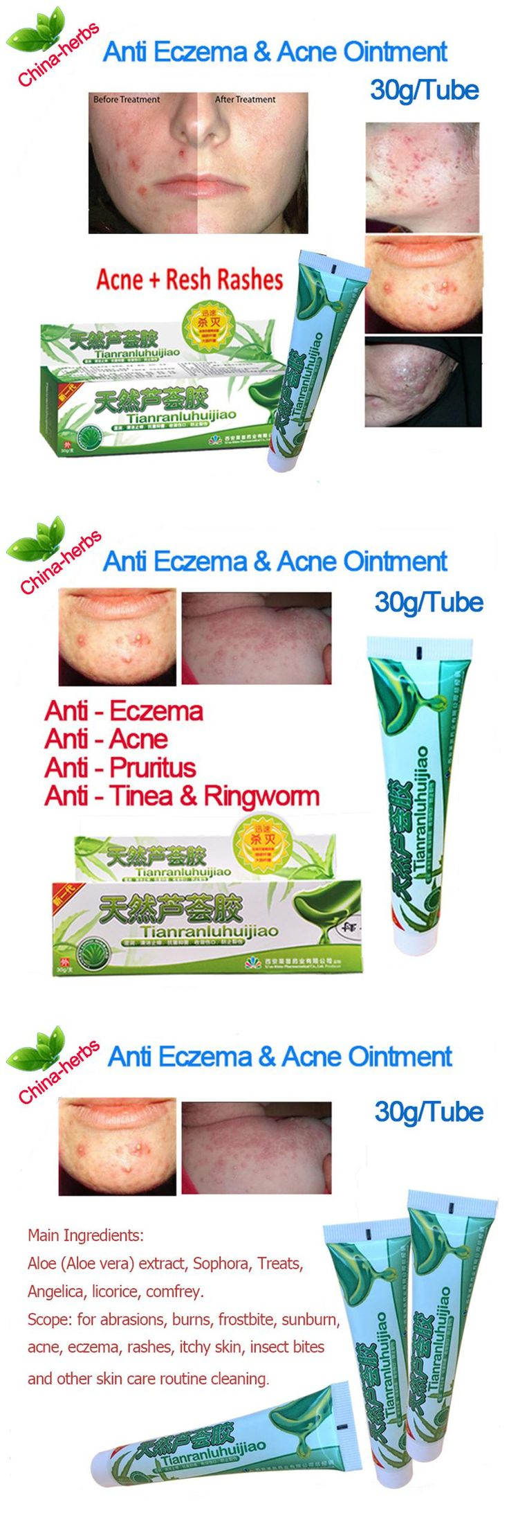 [Visit to Buy] 2packs Acne aloe gel remove pimples Treatment eczema ointment whelk cream suitable all skin itching insect bites oil control #Advertisement
