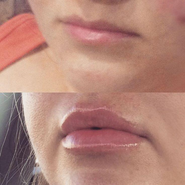 Самое приятное, когда твою процедуру не замечают окружающие. Это означает, что анатомически правильно всё сделано, и нет гиперкоррекции. #увеличениегуб #увеличениегубмосква #увеличениегубсызрань #губы #губымосква #губысызрань #губки #губкибантиком #принцесса #princess #volume #surgiderm30xp #surgiderm #juviderm #lips #doctor #cosmetics #cosmetology #coffee #morning #moscow #plastic #контурнаяпластикагуб #контурнаяпластика #контурнаяпластикалица…