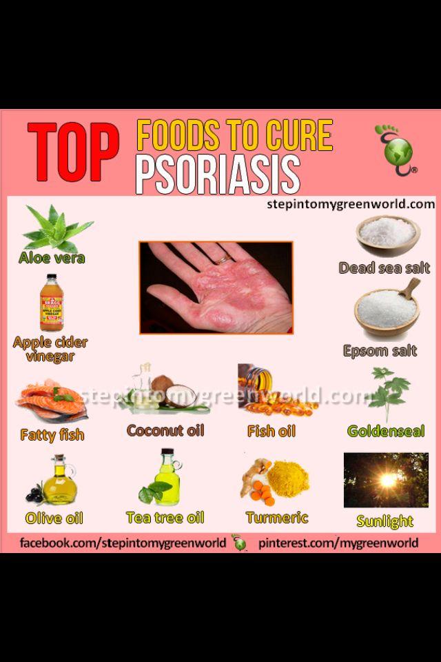 56 best psoriasis, arthritis , and psoriatic arthritis. images on, Skeleton