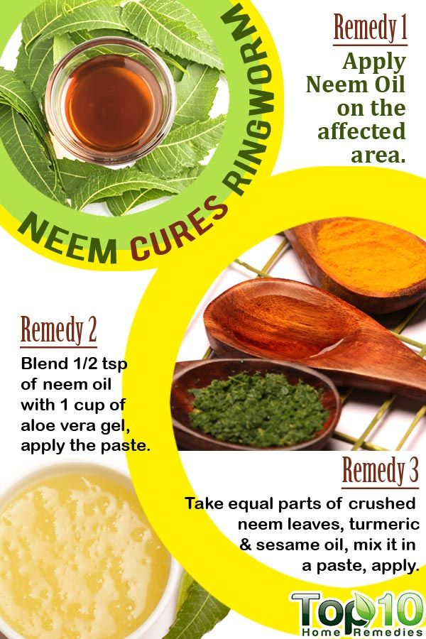 Neem Indian Lilac Home Remedy To Get Rid Of Ringworm Home - How to get rid of ringworm quickly with home remedies