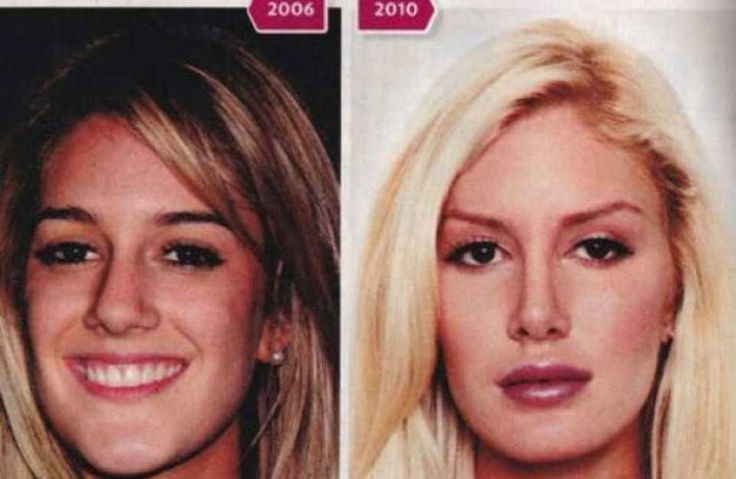 Chicago facial amp body plastic surgery howard county